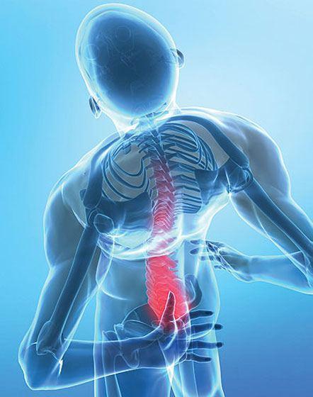 كل مايجب أن تعرفه عن مرض هشاشة العظام