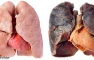 اضرار التدخين : الاضرار التي يسببها التدخين