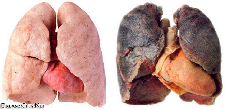 Danger-Smoking-respiratory-system21